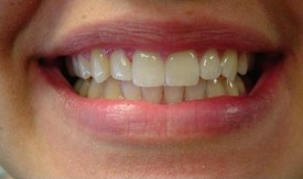invisalign-after-5
