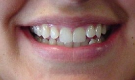 invisalign-before-5