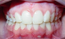 orthodontic-treatment-braces-after-1