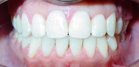 orthodontic-treatment-braces-after-3