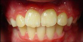 orthodontic-treatment-braces-after-5