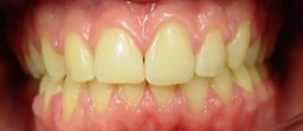 orthodontic-treatment-braces-after-6
