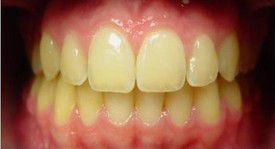 orthodontic-treatment-braces-after-7