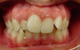 orthodontic-treatment-braces-before-1