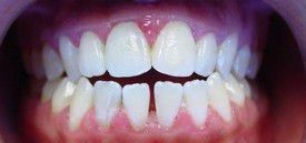 orthodontic-treatment-braces-before-3
