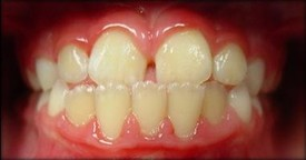 orthodontic-treatment-braces-before-5