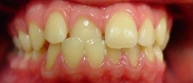 orthodontic-treatment-braces-before-6