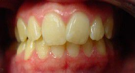 orthodontic-treatment-braces-before-7