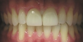 porcelain-crowns-after-2
