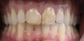 porcelain-crowns-before-2