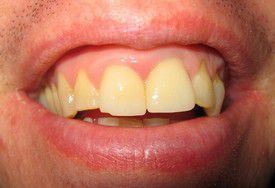 porcelain-crowns-before-5