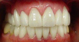 porcelain-veneers-after-2
