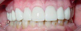 porcelain-veneers-after-4
