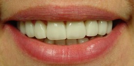 porcelain-veneers-after-5