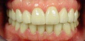 porcelain-veneers-after-6