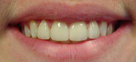 porcelain-veneers-after-7