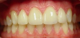 porcelain-veneers-after-8