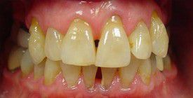 porcelain-veneers-before-2