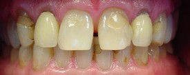 porcelain-veneers-before-4
