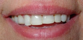 porcelain-veneers-before-5