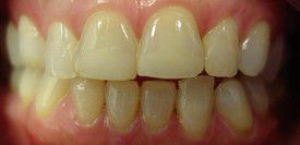 porcelain-veneers-before-6