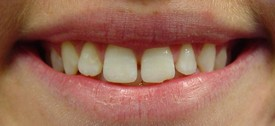 porcelain-veneers-before-7