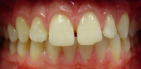 porcelain-veneers-before-8