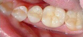 white-composite-fillings-after-2