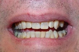white-composite-fillings-after-3