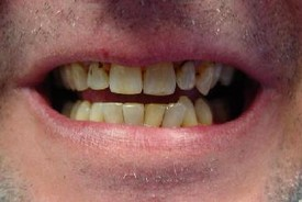 white-composite-fillings-before-3