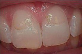 white-composite-fillings-before-4
